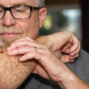 Man looking at abnormal skin mole on his arm.