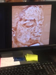 Image of the sun damage under Kim's skin.