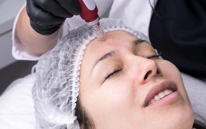 Women getting facial with a skin pen.