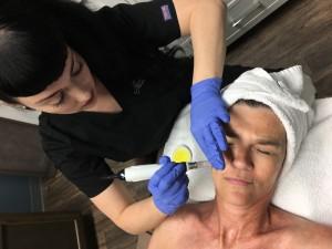 Microneedling Procedure from Overhead
