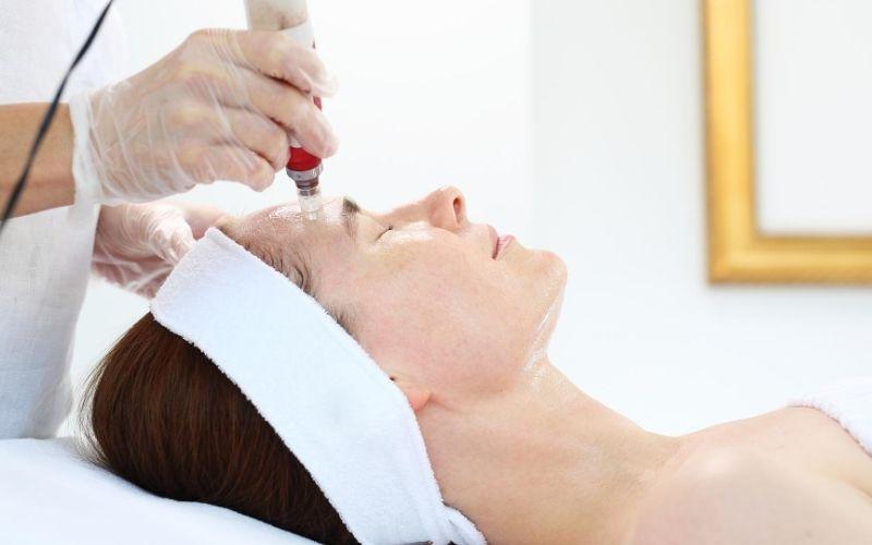 Woman receiving microneedling treatment.