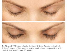 comparing lashes
