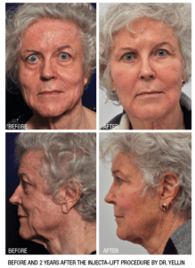 Injectable Transformation by Dr. Seth Yellin