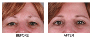 Before and After Eyelid Surgery by Y Plastic Surgery