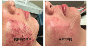 Before and after results with Atlanta Acne Specialists