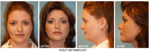 Dr. Maloney Facial Plastic Surgery Before and After