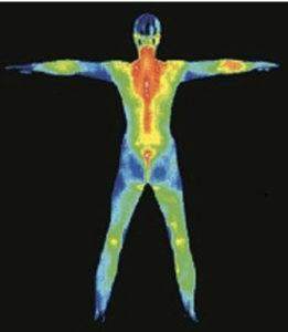 Spectrum Thermal Imaging 1 261x300